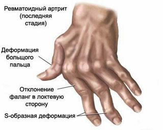 swollen painful thumb joints