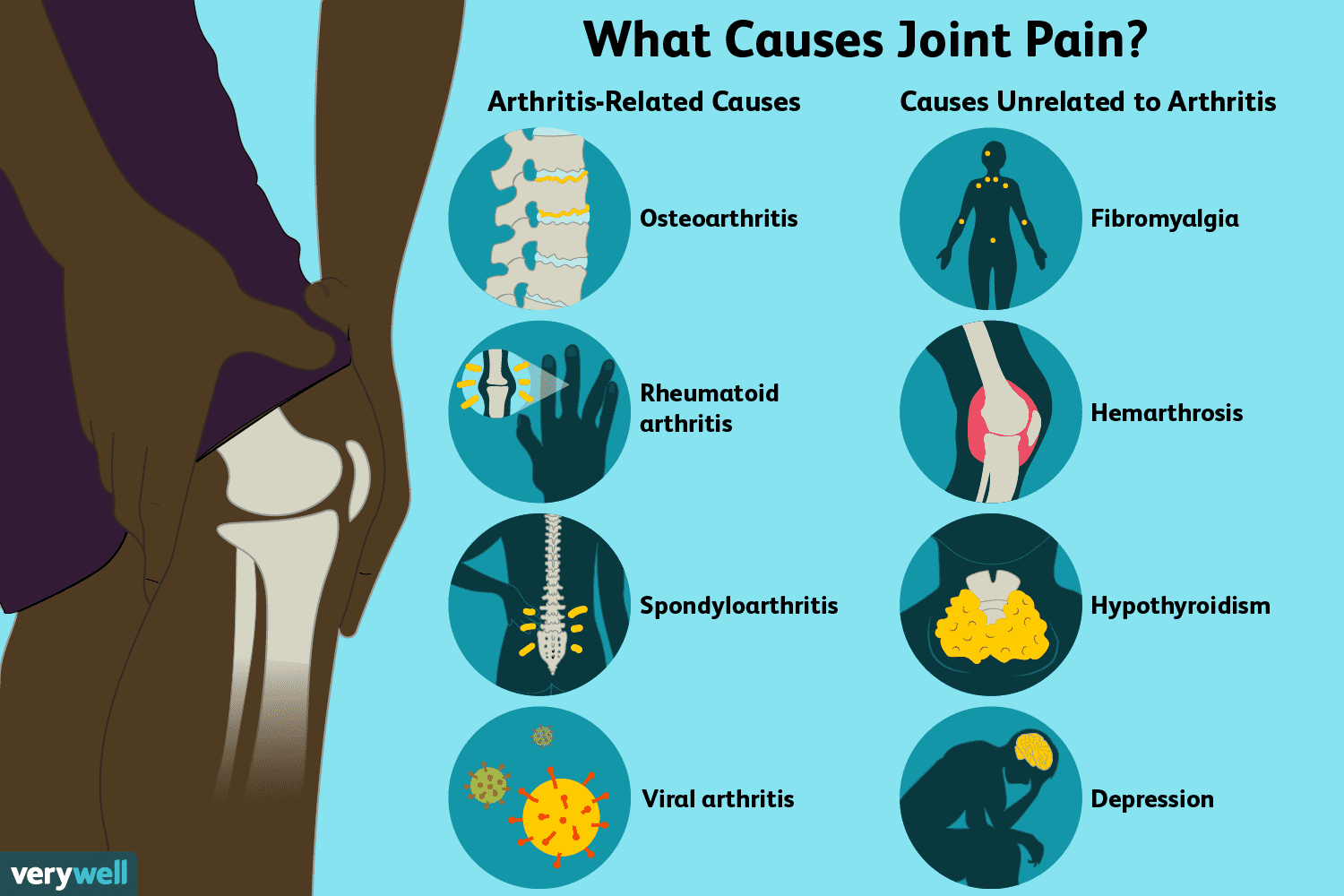 swelling in joints with pain liaudies metodai gydymas sąnariams